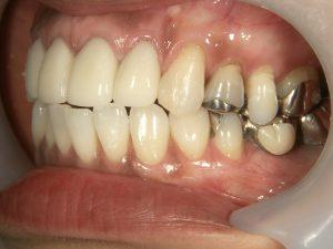 少しずつ銀歯取り替えていくところです。まずは見えるところからの希望です。