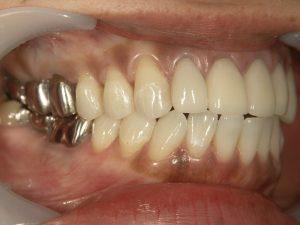 こういう感じの銀歯はだんだん歯肉との境目が合わなくなってきます。