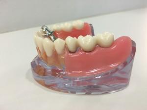 こちら正面のクラウンはインプラントです。次の写真で歯肉剥がれます。