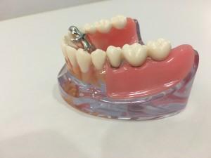 そして被せ物をするとまるで自分の歯、クラウンのように見えますね。